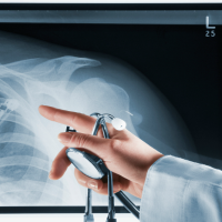 dislocacion de hombro tratamiento diagnostico