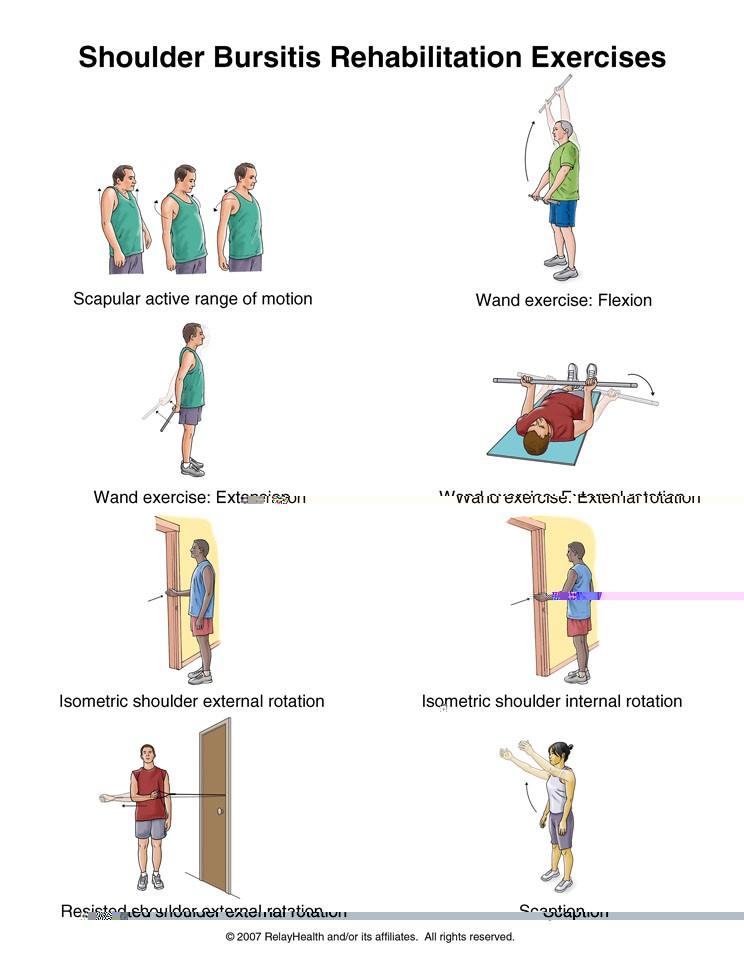 Ejercicios para la bursitis de hombro