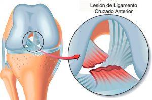 lesion-de-ligamento-cruzado