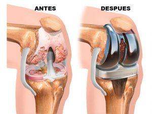 protesis-de-rodilla
